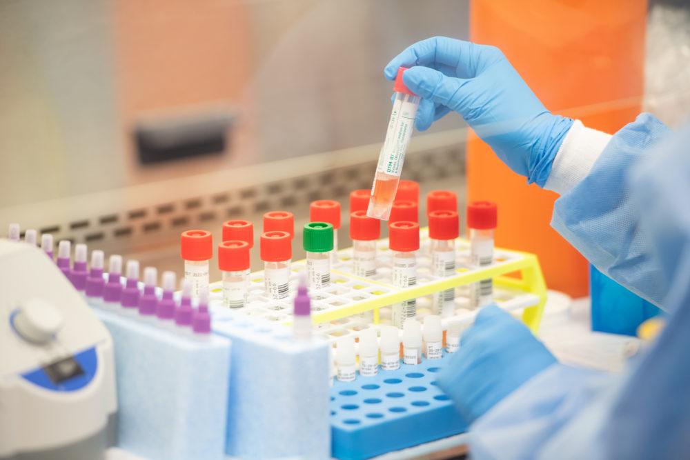 Coronavirus Testing Kits Market